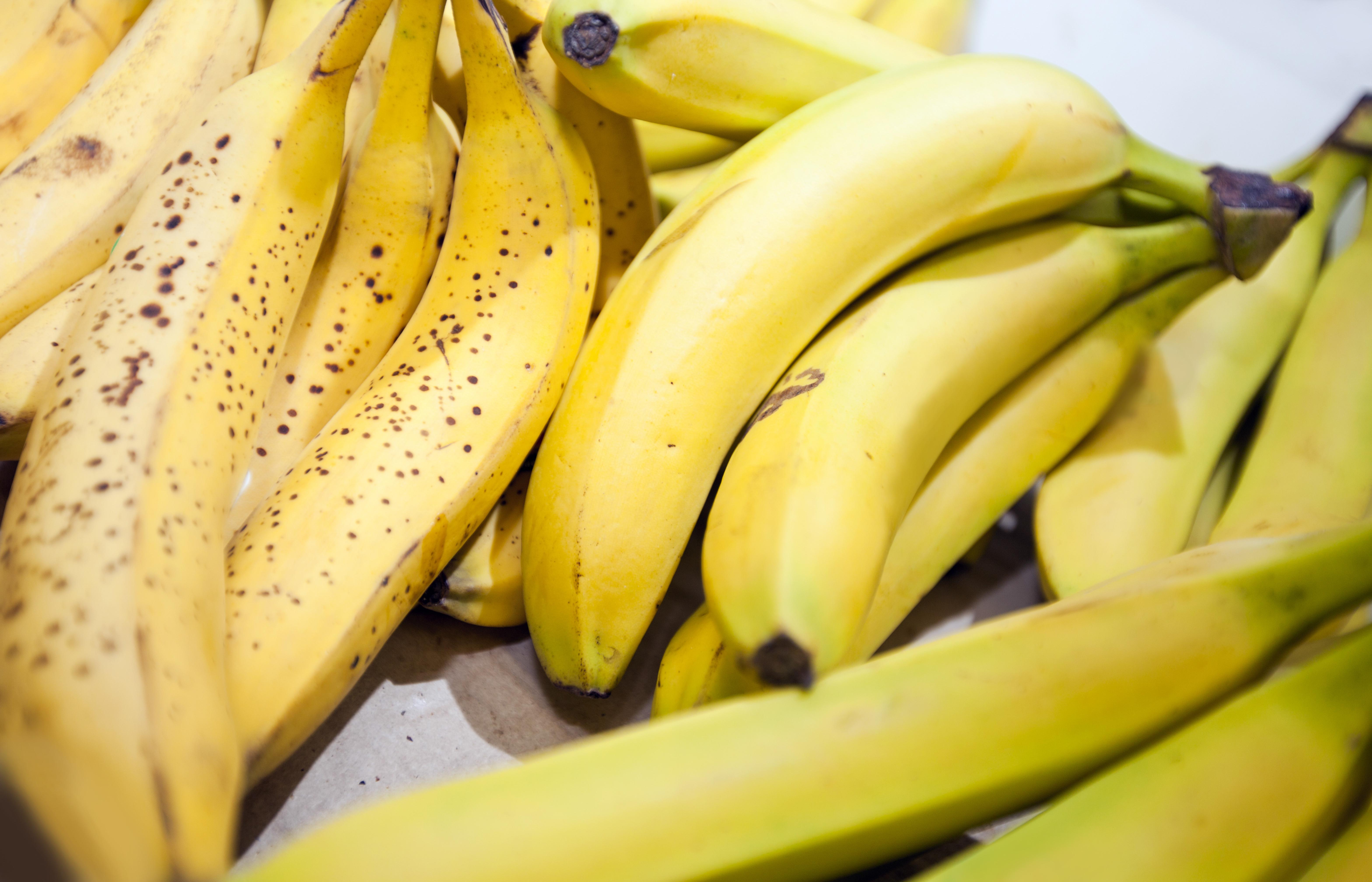 Photo of היתרונות הבריאותיים של הבננה